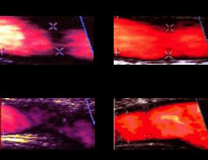 Carotid Artery and Ileofemoral Artery
